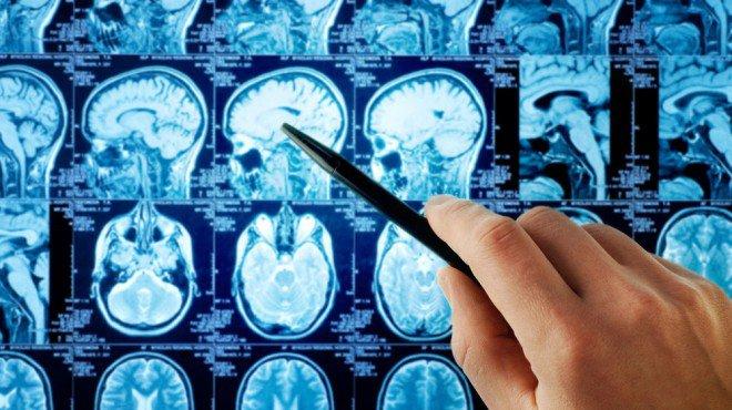 brain-scans-660x370